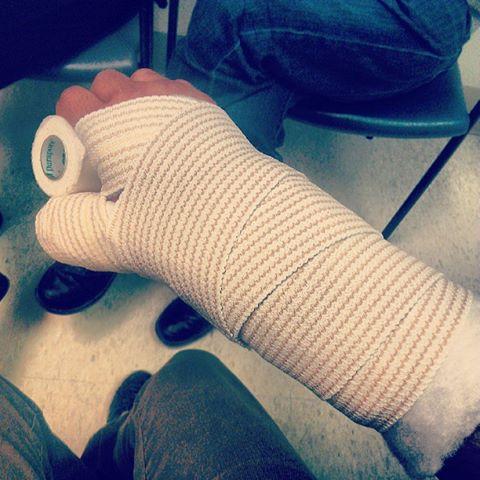 Ben Weinmans gebrochener Arm