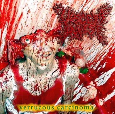 Visera Infest VERRUCOUS CARCINOMA