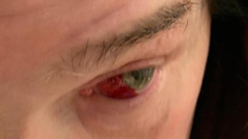 Ozzy Osbourne mit seiner geplatzten Ader im Auge