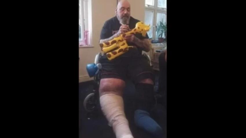 Die Beine von Paul Di'Anno sind krass angeschwollen